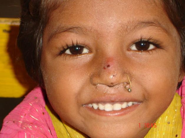Health Check-up Camp – Phansipada Village, Ambernath (2008)